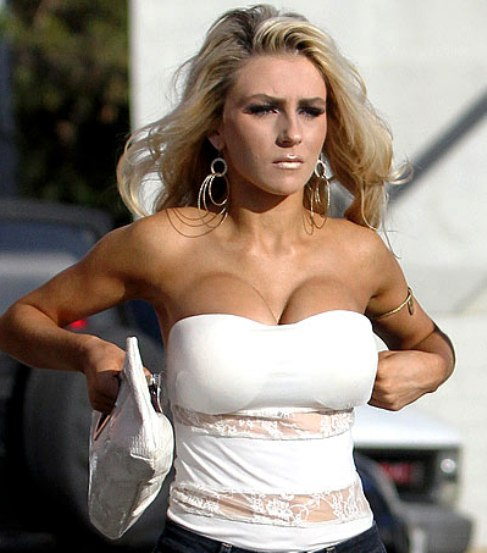 courtney stodden breast implants